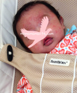 乳児湿疹 顔の赤み ブツブツ 新生児ニキビ